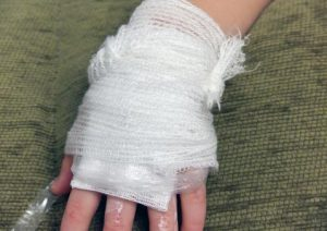 Burn Injury - scarring and disfigurement - Rhode Island workers compensation lawyer